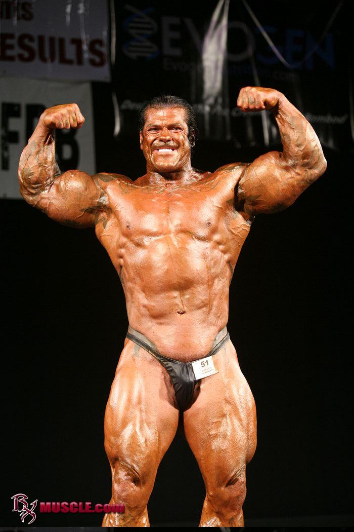 gyno off steroids